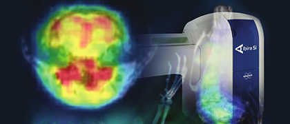 Bruker completes acquisition of preclinical PET imaging business