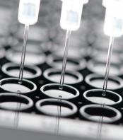 Label-free protein analysis