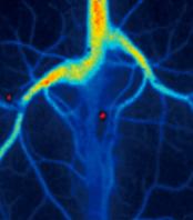 Laser speckle imaging